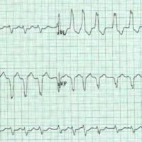Akademia EKG