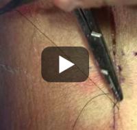 Szycie Chirurgiczne