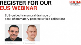 EUS-guided transmural drainage of post-inflammatory pancreatic fluid collections