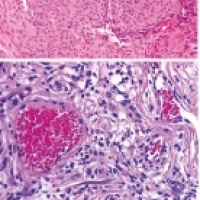 Update in Bone And Soft Tissue Pathology