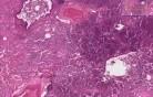 Odoskrzelowe zapalenie płuc z mikroropniami - obraz kliniczny i histopatologiczny
