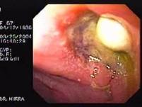 Częściowe rozejście się szwów z przetoką żołądkowo-skórną (4 z 4)