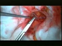 Zasady i technika wykonania hemikolektomii prawostronnej. Operacja nr 1, część 4.