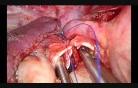 Utrudnione torakoskopowe zespolenie oskrzelowe (Rękawowa resekcja płata górnego płuca prawego)