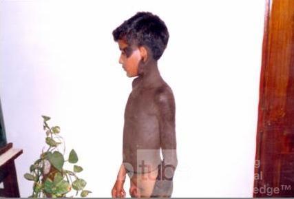 Hiperpigmentacja skóry- inne ujęcie (2)