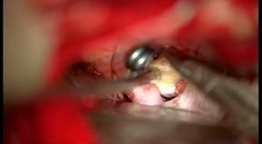Klipsowanie tętniaka tętnicy łączącej tylnej