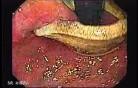 Penetracja regulowanej opaski na żołądku (3 z 4)