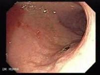 Angiodysplazja żołądka (14 z 17)
