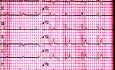 EKG quiz 1 - pacjent ze zmęczeniem i zawrotami głowy