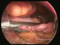 Leczenie chirurgiczne otyłości- gastrektomia laparoskopowa