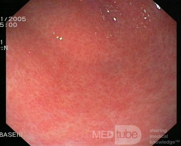 Endoskopia - przewlekłe zapalenie błony śluzowej żołądka