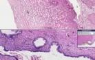 Rak płaskonabłonkowy - histopatologia - szyjka macicy