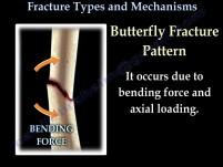 Złamanie kości - rodzaje i mechanizmy