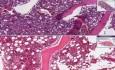 Gruczolakorak, przerzutowy - histopatologia - szpik kostny