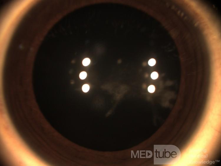 Sideroza oka