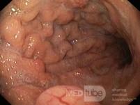 Nietypowy obraz polipów dna i trzonu żołądka w endoskopii. Chromoendoskopia. NET (1/6)