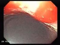 Angiodysplazja żołądka (9 z 17)