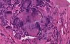 Reakcja na ciało obce - histopatologia - tkanka miękka