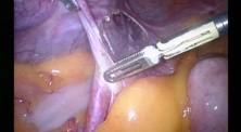 Adnexectomia - 12 cm guz jajnika