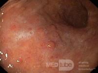 Nietypowy obraz polipów dna i trzonu żołądka w endoskopii. Chromoendoskopia. NET (2/6)