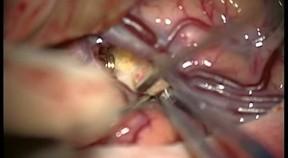 Tętniak olbrzymi tętnicy środkowej mózgu o szerokiej szyjce