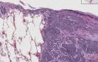 Drobnokomórkowy rak płuc - histopatologia - płuco, tkanka podopłucnowa
