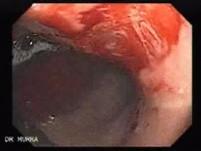 Angiodysplazja żołądka (15 z 17)