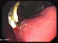 Penetracja regulowanej opaski na żołądku (2 z 4)