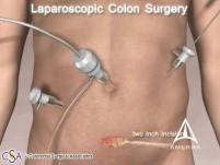 Rak jelita grubego - operacja - animacja 3D