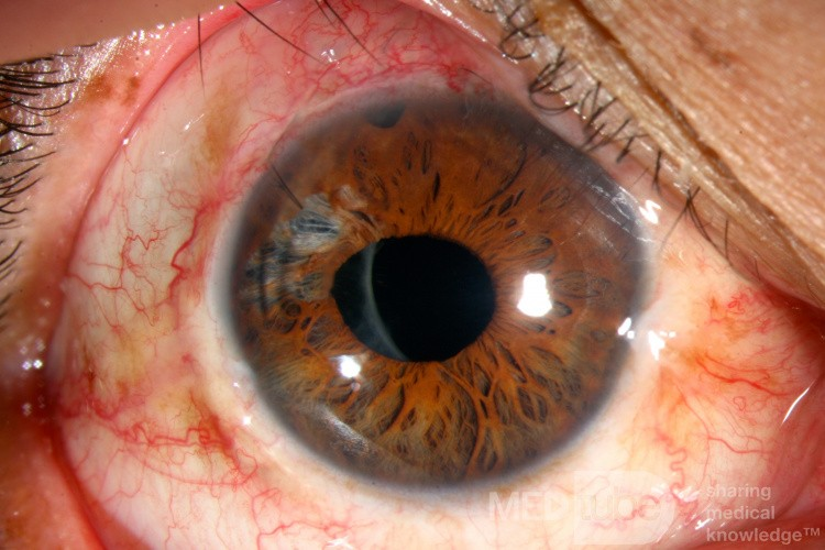 Tępy uraz oka. Fakotrabekulektomia. Plastyka tęczówki.