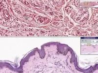 Żółtak - histopatologia skóry