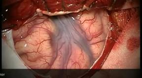 Transsylwialna wybiórcza amygdalohippocampektomia
