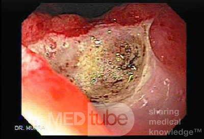 Wrzody u pacjenta z marskością wątroby - ocena wrzodu